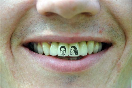 Royal Teeth Tattoo