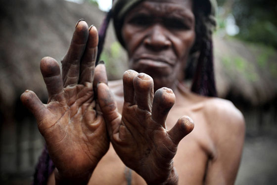 Dani Tribe Ritual - No Fingers