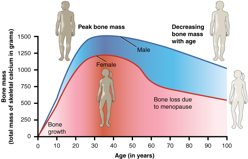 615_Age_and_Bone_Mass