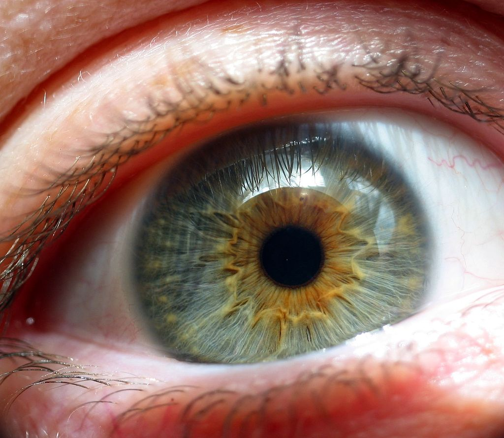 What Scary Eye Conditions should know about? ... photo by CC user Chad Miller on Flickr